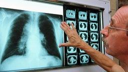 Lungenfacharzt betrachtet die Röntgenaufnahme einer Lunge sowie Computertomographien. © dpa Foto: Jan-Peter Kasper