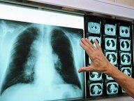 Lungenfacharzt betrachtet die Röntgenaufnahme einer Lunge sowie Computertomographien. © dpa Fotograf: Jan-Peter Kasper