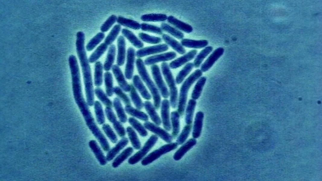 Tödliche Gefahr: Das Ende der Antibiotika?