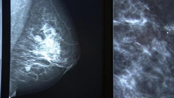 Brustkrebs-Vorstufe: OP bei DCIS empfohlen | NDR.de