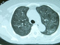 X-ray of lungs.