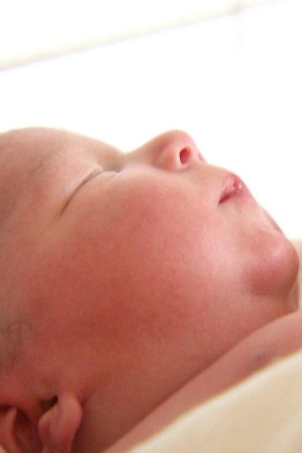 Keine Häufung von Fehlbildungen bei Babys in MV