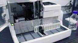 Dopingproben von Sportlern in einem Kontrollgerät. © NDR