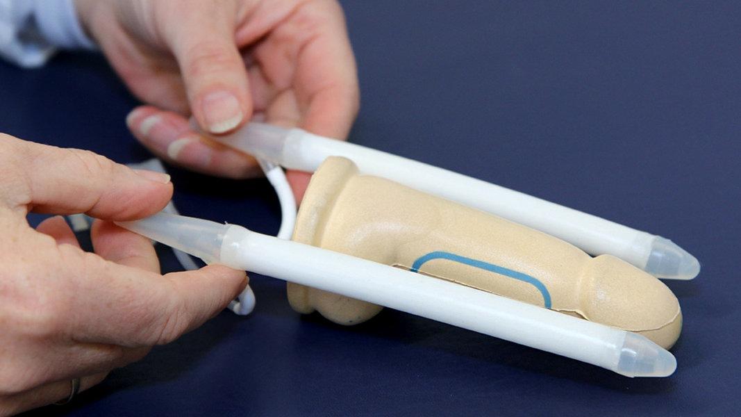 penis operation kosten