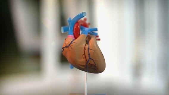 So entsteht eine Herzmuskelverdickung   NDR.de - Ratgeber - Gesundheit