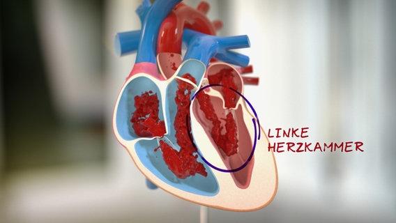 Herzmuskelverdickung