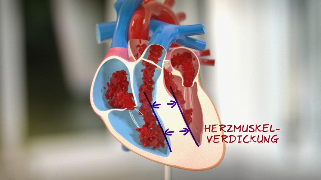 Verdickter Herzmuskel