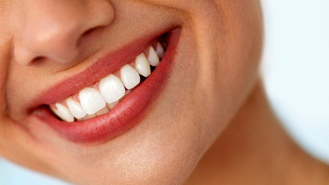 Weiße Zähne: Wie gut sind Bleaching-Produkte?