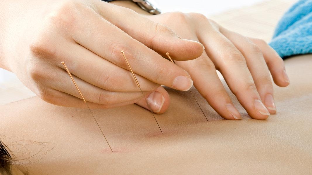 Gelenkschmerzen Akupunktur Und Akupressur Helfen Ndrde