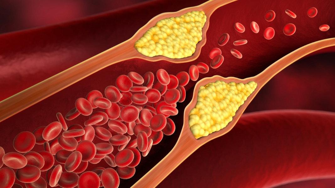 arteriosklerose vorbeugen und behandeln ratgeber gesundheit. Black Bedroom Furniture Sets. Home Design Ideas