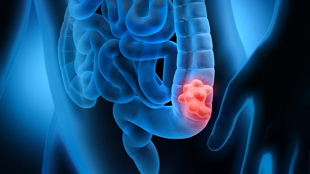 Darmkrebs Erkennen