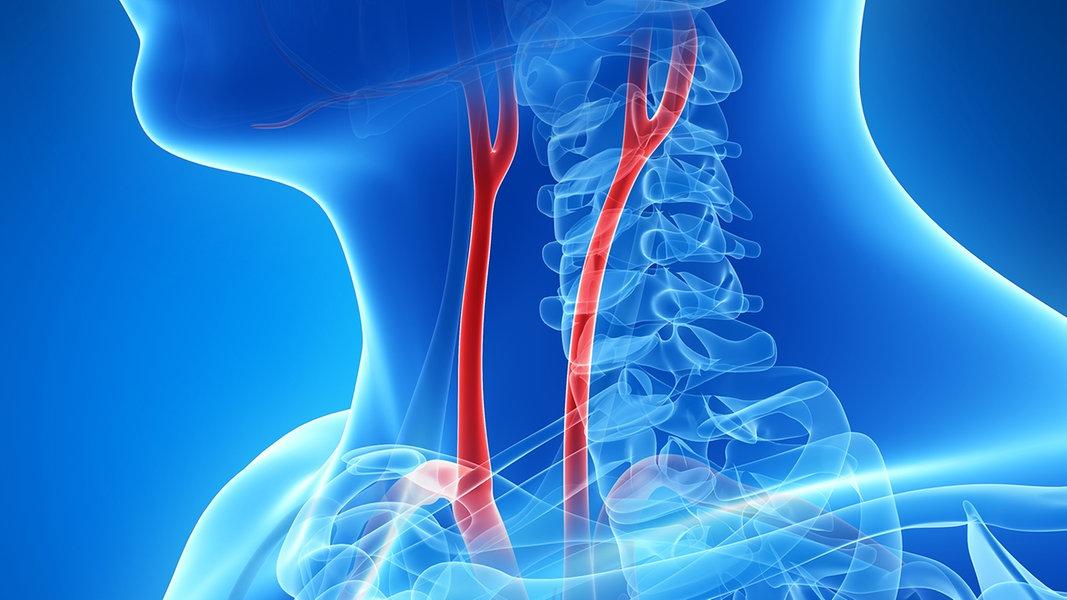 Halsschlagader