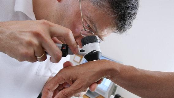 Результат изображения для лечения рака кожи спиналиом