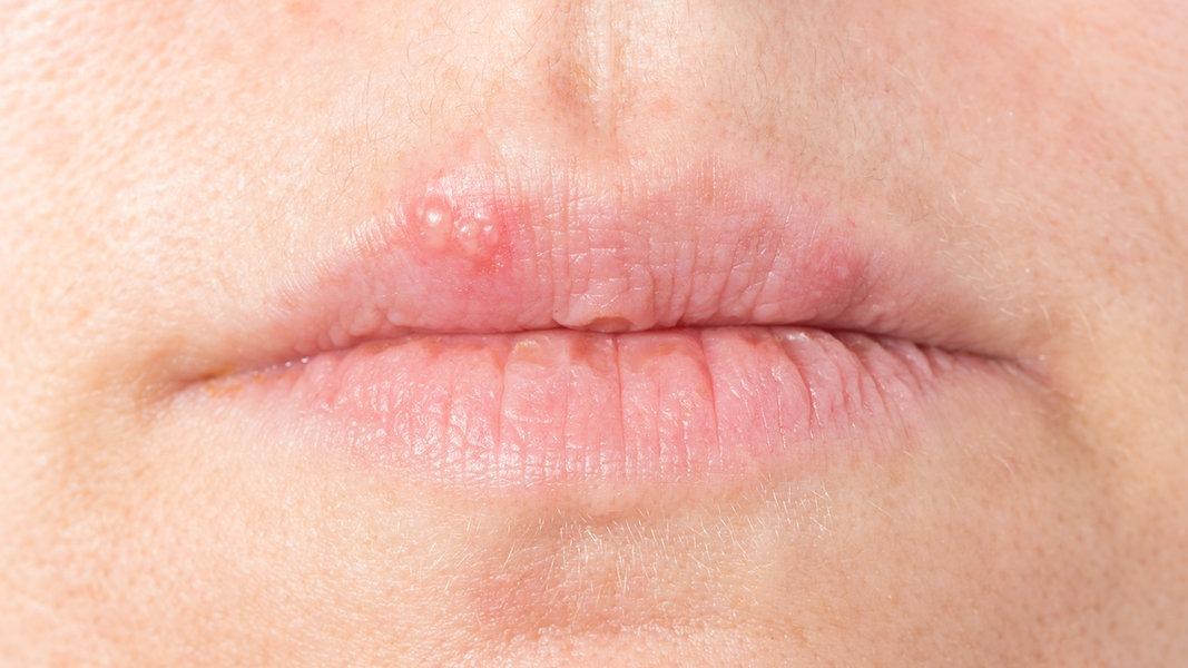 Wasserstoffperoxid gegen herpes