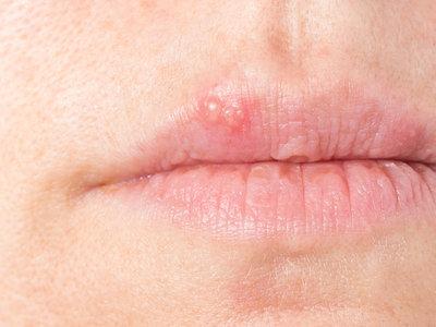 Herpes wann weg mund geht im Bläschen im
