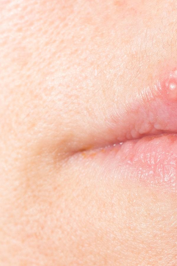 herpes lippe innen
