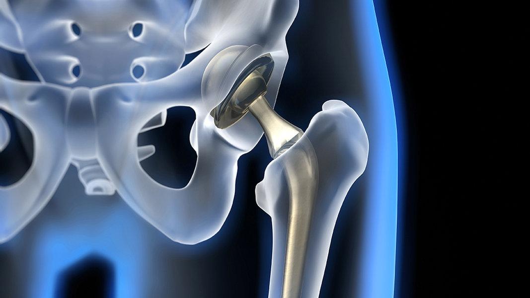 Gibt es bei Schmerzen im Hüftbereich auch andere Ursachen?