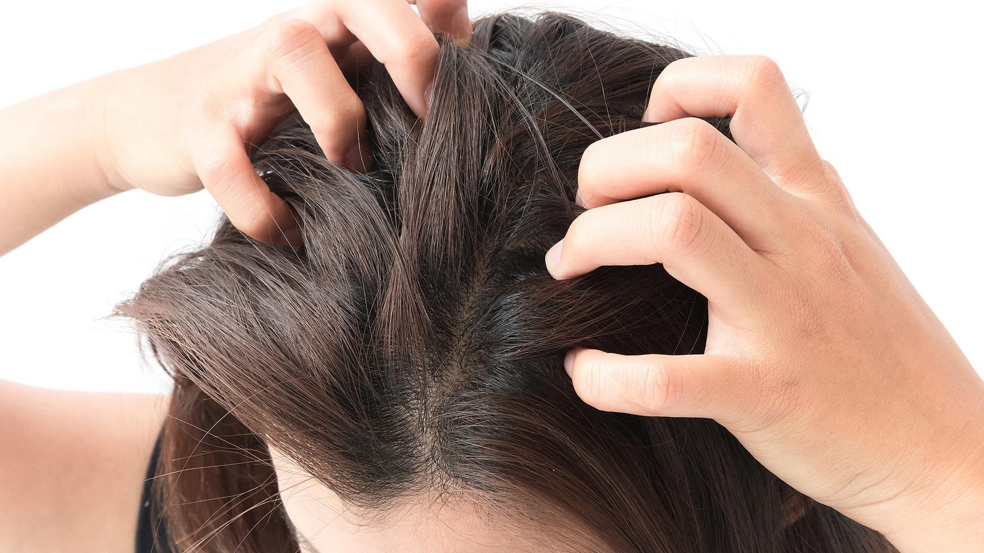 Kopfhaut urea schuppenflechte Eucerin® DermoCapillaire