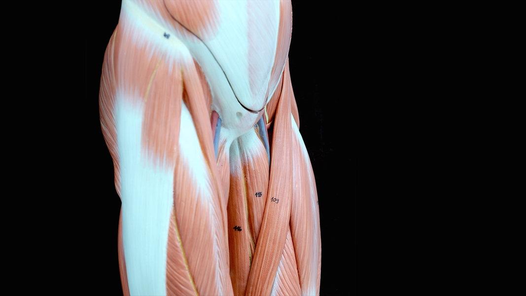 Wie wird ein nabelbruch operiert