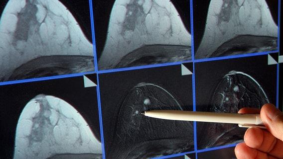 Brustkrebsvorsorge Abtasten Mammografie Ultraschall Ndrde