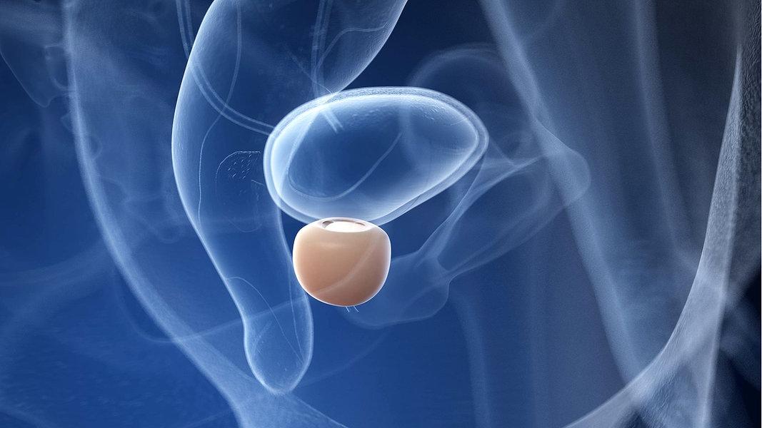 behandlung chronische prostataentzündung