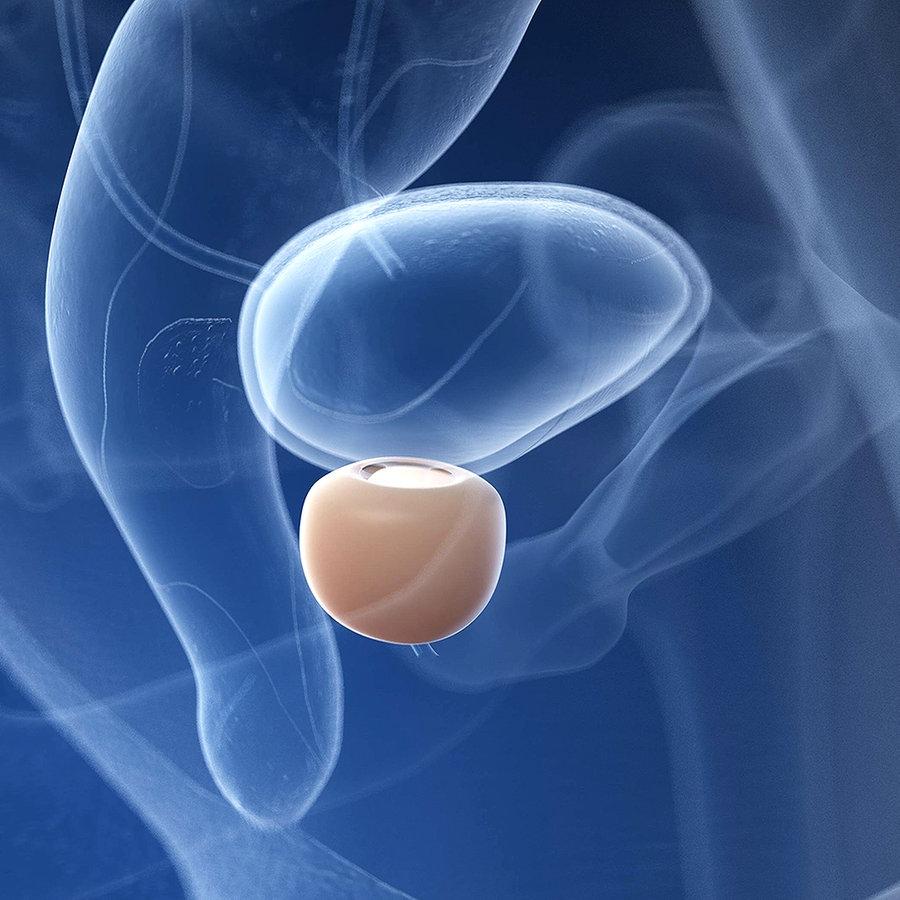 Selbst tasten prostata Prostata