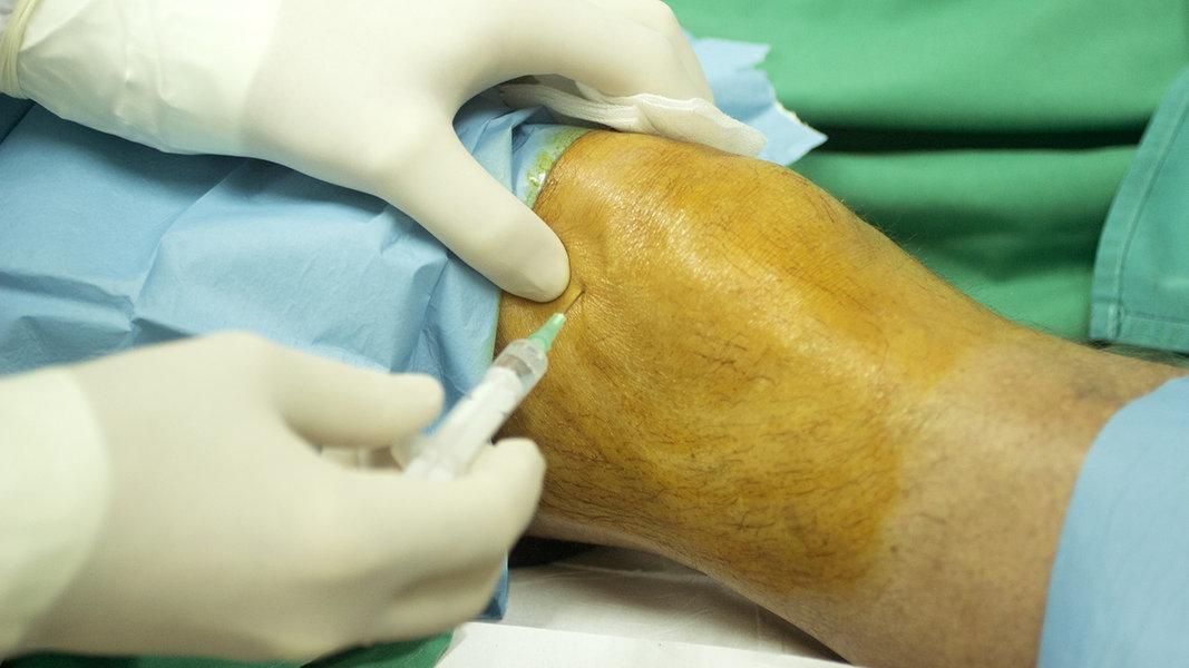 Arthrose - Behandlungsmöglichkeiten