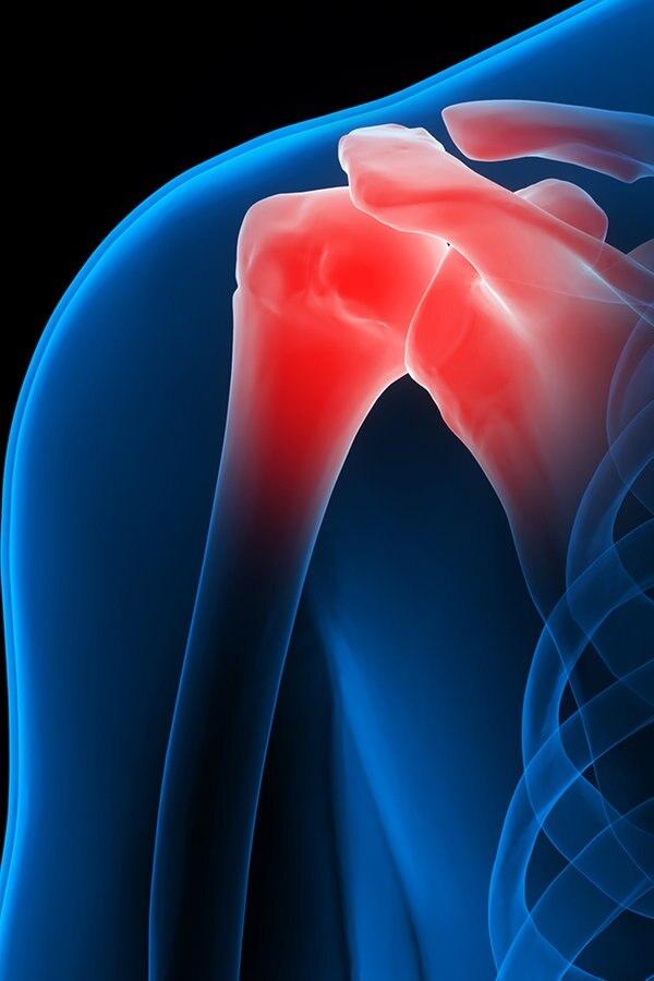 Schulterschmerzen – heftiges Reißen in der Schulter