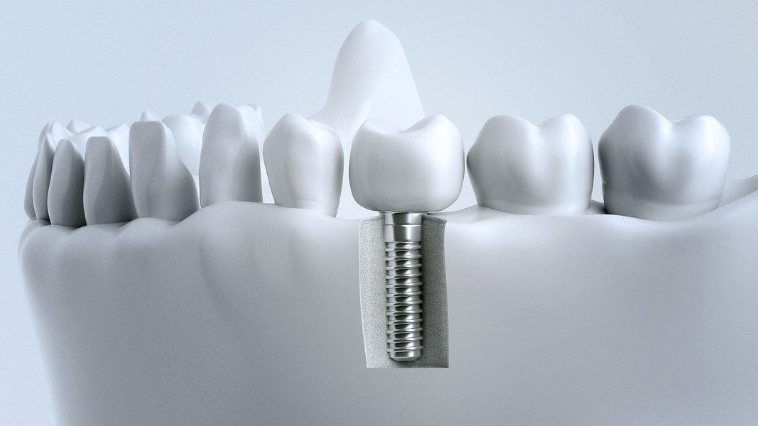Zahnersatz: Brücke oder Implantat? | NDR de - Ratgeber