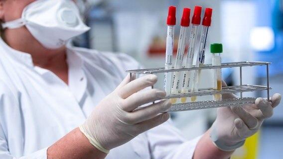 Laborproben in Reagenzgläsern werden in einem Ständer gehalten. © dpa Foto: Sven Hoppe