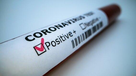 Positiver Coronatest © PantherMedia Foto: RECSTOCKFOOTAGE