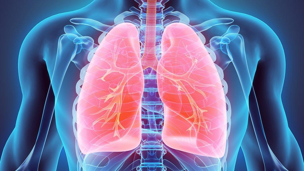 COPD behandeln: Wie Lungentraining helfen kann
