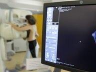 Eine Frau bei einer Mammographie © picture alliance / maxppp Foto: François Destoc