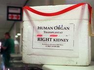 Organspendebehälter auf einem Tisch © picture-alliance / ZB Fotograf: Kalaene Jens