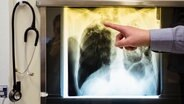 Ein Arzt zeigt einen Tuberkulose-Fall anhand eines Röntgenbildes. © dpa Foto: Gregor Fischer