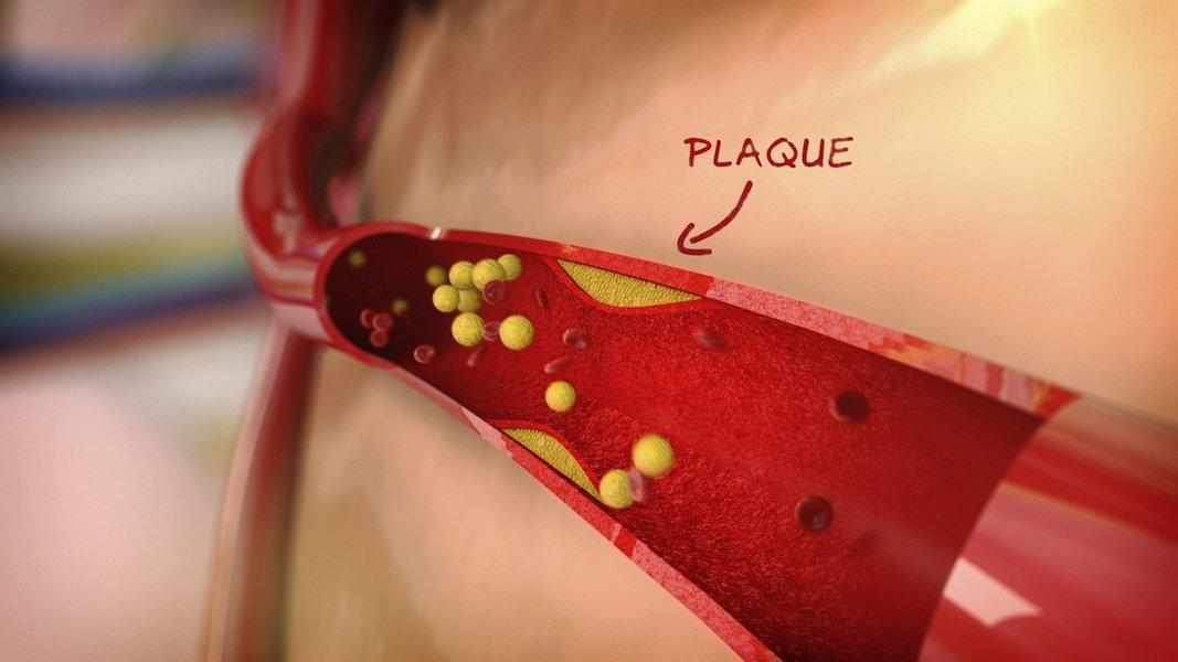 Harnsäuretriglyceride und Cholesterin-Diät
