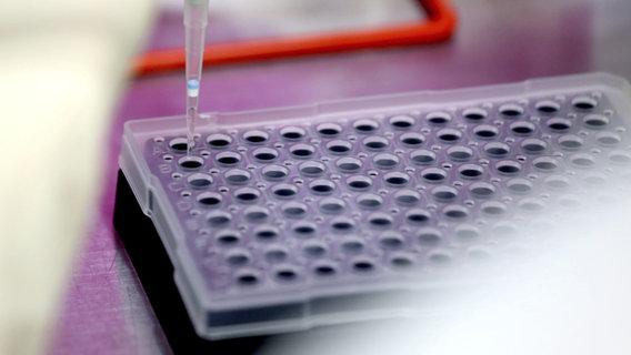 Corona 262 Neuinfektionen In Schleswig Holstein Gemeldet Ndr De Nachrichten Schleswig Holstein Coronavirus