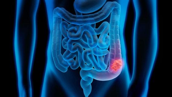 Gute Erfolge Bei Minimalinvasiver Darmkrebs OP