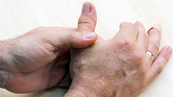 Schmerzen am Handballen