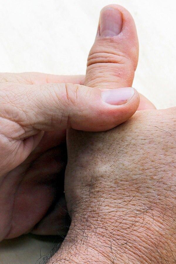 Schmerzen und Knacken in der Hand – Daumenarthrose bzw. Rhizarthrose | Symptome und Behandlung