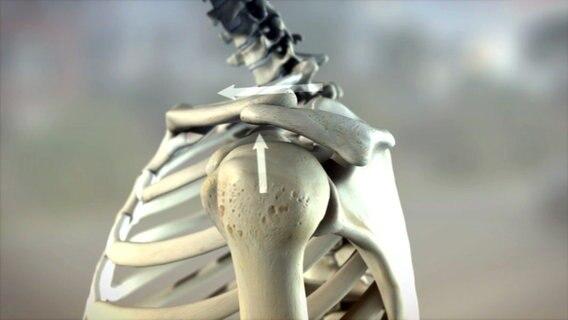 Schulterschmerzen richtig behandeln