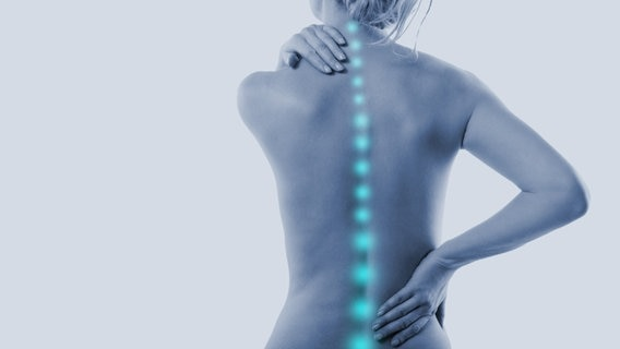 Eine Frau greift sich an Nacken und am Rücken, ihre Wirbelsäule wird als blaue Linie angedeutet, um auf einen Schmerz hinzuweisen. © fotolia Fotograf: drubig-photo